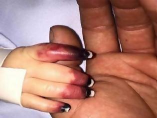Φωτογραφία για Όταν οι γιατροί εξέτασαν τα χέρια του μωρού, πανικοβλήθηκαν - Τότε, ανακοίνωσαν στους γονείς την ανατριχιαστική αλήθεια [photos]