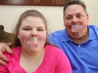 Φωτογραφία για Εικόνες που προκαλούν ανατριχίλα! Δεν μπορείς να φανταστείς τι κρύβουν στο στόμα τους μπαμπάς και κόρη! [photos+video]