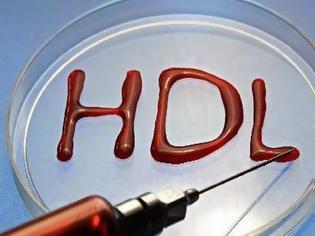 Φωτογραφία για Ανεβασμένη χοληστερίνη; Δες ποιους κινδύνους κρύβει και πώς θα τη μειώσεις...