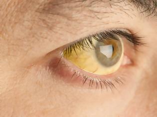 Φωτογραφία για Κίτρινα μάτια: Τι σύμπτωμα είναι – Ποιοι πρέπει να προσέχουν
