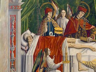 Φωτογραφία για Οι Άγιοι Ανάργυροι έκαναν την πρώτη μεταμόσχευση στον κόσμο