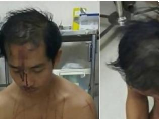 Φωτογραφία για Μπήκε στο Νοσοκομείο ουρλιάζοντας, κρατώντας το στο χέρι. Αυτό που πήγε και έκανε, είναι ότι πιο ανατριχιαστικό [photos]