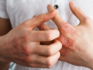 Φωτογραφία για Αυξημένο καρδιακό κίνδυνο αντιμετωπίζουν οι ενήλικες με σοβαρό έκζεμα