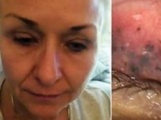 Φωτογραφία για Σοκ: Για 25 χρόνια δεν έβγαζε τη μάσκαρα από τα μάτια της - Δείτε τι έπαθε! [Σκληρές Εικόνες]