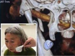 Φωτογραφία για Οι γιατροί έπαθαν ΣΟΚ όταν ανακάλυψαν ότι στο πρόσωπό της είχε… [photo]