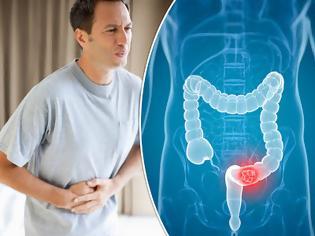 Φωτογραφία για Ποιοι κινδυνεύουν από τον καρκίνο του παχέος εντέρου; Ποιες τροφές βοηθούν στην πρόληψη;