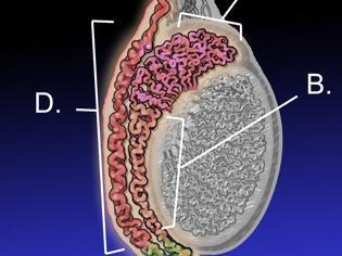 Φωτογραφία για Καρκίνος των όρχεων: Αίτια, συμπτώματα, διάγνωση και αντιμετώπιση