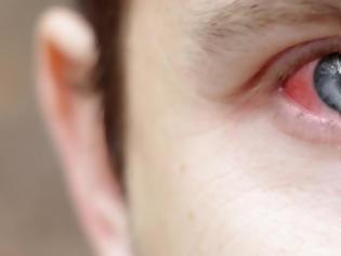 Φωτογραφία για Γιατί κοκκινίζουν τα μάτια σου;