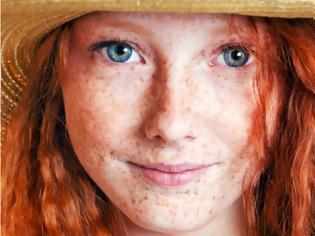Φωτογραφία για 7 παθήσεις που προκαλούν κοκκίνισμα στο πρόσωπο