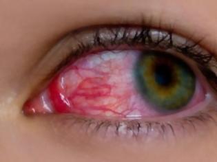 Φωτογραφία για Ραγοειδίτιδα: Τα αίτια και τα συμπτώματα της άγνωστης πάθησης που «απειλεί» την όραση!