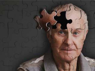 Φωτογραφία για Αμερικανοί επιστήμονες κατάφεραν να αναστρέψουν την απώλεια μνήμης σε ηλικιωμένους!