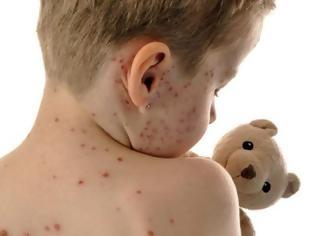 Φωτογραφία για Βαριά πρόστιμα σε γονείς που δεν κάνουν στα παιδιά τους το εμβόλιο της ιλαράς προωθεί η Γερμανία!