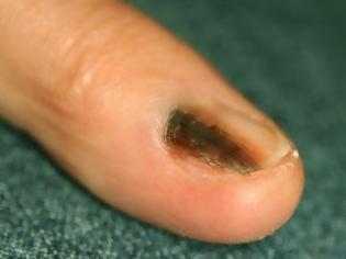 Φωτογραφία για Μελάνωμα σε νύχι, άκρες δακτύλων. Οι σκούρες γραμμές στα νύχια είναι αιμάτωμα ή καρκίνος;