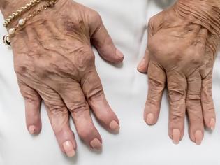 Φωτογραφία για Μια νέα θεραπευτική στρατηγική για τη ρευματοειδή αρθρίτιδα ανακάλυψαν Έλληνες και ξένοι επιστήμονες