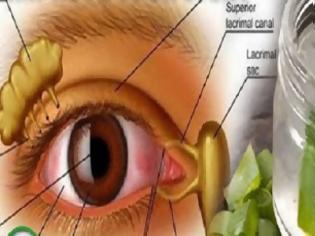 Φωτογραφία για Πείτε αντίο στα γυαλιά σας και βελτιώστε την όρασή σας με αυτή τη εκπληκτική σπιτική συνταγή!