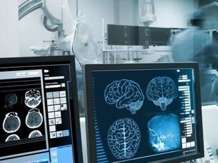 Φωτογραφία για Εγκεφαλικό επεισόδιο: Ο παράγοντας που αυξάνει τον κίνδυνο κατά 30%