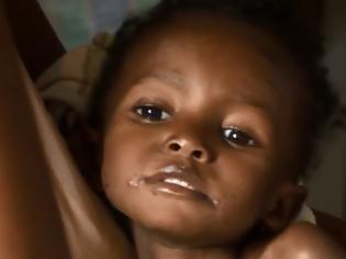 Φωτογραφία για Από πείνα οι μισοί θάνατοι παιδιών στην Αφρική