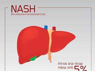 Φωτογραφία για Παγκόσμια Ημέρα μη Αλκοολικής λιπώδους νόσου του ήπατος  (NASH)