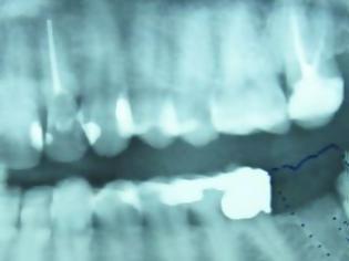 Φωτογραφία για Ένα δόντι μεγάλωνε γεννητικά όργανα