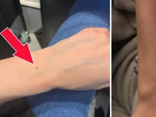 Φωτογραφία για Γιατί όλες οι γυναίκες έχουν μια φακίδα στο ίδιο σημείο του χεριού τους!