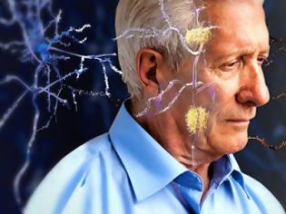 Φωτογραφία για Η σωστή διατροφή που προστατεύει και καθυστερεί την άνοια και το Αλτσχάιμερ