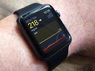 Φωτογραφία για Μελλοντικά το ρολόι της Apple θα παρακολουθεί τη γλυκόζης στους χρήστες