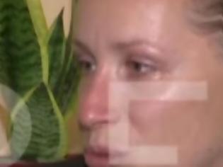 Φωτογραφία για Κοζάνη: Συγκλονίζει η μητέρα του 5χρονου που κατασπάραξαν τα ροτβάιλερ (video)