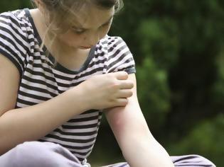 Φωτογραφία για Το μυστικό για να κρατάς μακριά τα κουνούπια