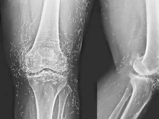 Φωτογραφία για Πήγε στο γιατρό επειδή πονούσαν τα γόνατά της και οι γιατροί έπαθαν σοκ με αυτό που αντίκρισαν…