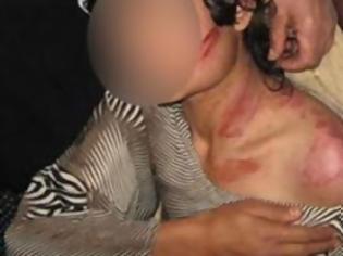 Φωτογραφία για Οδηγίες ιατροδικαστή για το τι πρέπει να κάνουμε όταν πέσουμε θύμα ξυλοδαρμού
