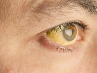 Φωτογραφία για Κίτρινα μάτια: Ποιο πρόβλημα υγείας «μαρτυρούν» - Ποιοι πρέπει να προσέχουν