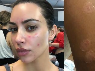 Φωτογραφία για Η Κιμ Καρντάσιαν αφαιρεί το make up και δείχνει τα σημάδια της ψωριασικής αρθρίτιδας πάνω της