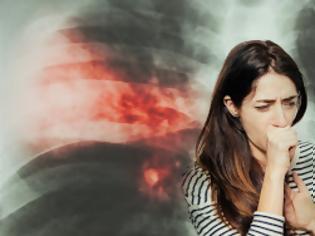 Φωτογραφία για Τι είναι η Πνευμονία ποιοι οι τύποι της, ποια τα συμπτώματα; Πρόληψη της πνευμονίας;