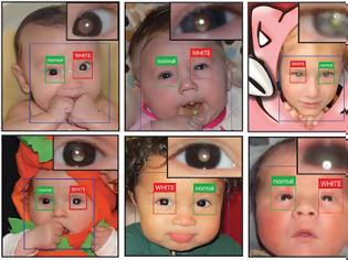 Φωτογραφία για Παιδιά: Εφαρμογή για smartphone εντοπίζει οφθαλμοπάθειες στις φωτογραφίες