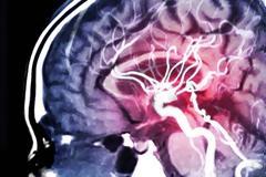 Όγκος στον εγκέφαλο : Νέο τεστ με τεχνητή νοημοσύνη δίνει έγκαιρα διάγνωση
