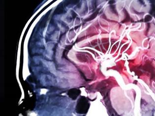 Φωτογραφία για Όγκος στον εγκέφαλο : Νέο τεστ με τεχνητή νοημοσύνη δίνει έγκαιρα διάγνωση