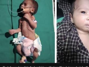Φωτογραφία για Ινδία: Το νεογέννητο κοριτσάκι που είχε βρεθεί θαμμένο ζωντανό μέσα σε αυτοσχέδιο τάφο έχει αναρρώσει πλήρως