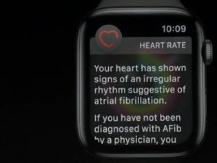 Φωτογραφία για Το Apple Watch έσωσε τη ζωή ανθρώπου με κολπική μαρμαρυγή