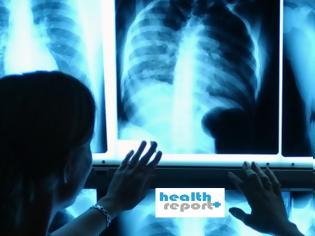 Φωτογραφία για Έρχονται δωρεάν προληπτικές εξετάσεις για ασθενείς! Οι δεσμεύσεις Κικίλια