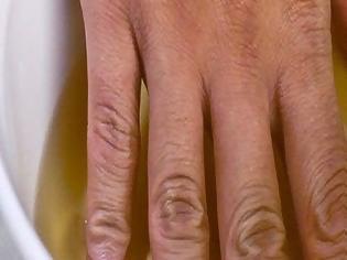 Φωτογραφία για Βάζει το χέρι της σε μηλόξιδο δύο φορές την εβδομάδα. Μόλις μάθετε τον λόγο θα το κάνετε κι εσείς!