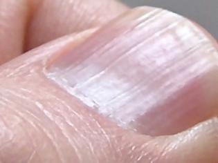 Φωτογραφία για Σημάδια στα νύχια δείχνουν πρόβλημα σε καρδιά, νεφρά και συκώτι