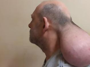 Φωτογραφία για Έβγαλα 2ο κεφάλι, καταγγέλλει κρατούμενος, μετά από κτύπημα, φοβούμενος για την ζωή του (video)
