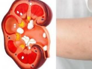 Φωτογραφία για ΠΡΟΣΟΧΗ:8 σημάδια πως τα νεφρά σας κινδυνεύουν!
