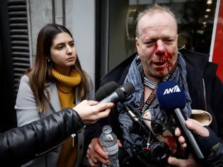 Φωτογραφία για Ακροδεξιοί ξυλοκόπησαν στο Σύνταγμα δημοσιογράφο της Deutsche Welle