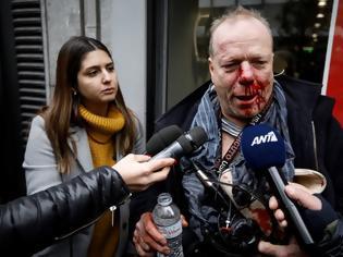 Φωτογραφία για Χαρίτσης: Η κυβέρνηση να εντοπίσει τους δράστες της επίθεσης στον Θ. Ιακομπι