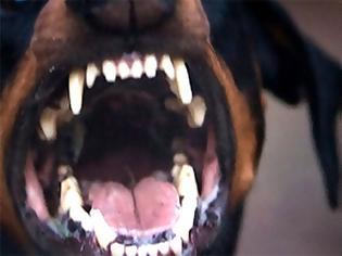Φωτογραφία για Αποζημίωση 2.000 ευρώ σε γυναίκα για δάγκωμα σκύλου