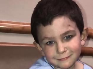 Φωτογραφία για Ήρωας ετών 5: Έβγαλε την αδερφή του έξω από φλεγόμενο σπίτι και επέστρεψε για το σκυλί