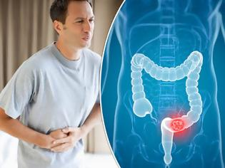 Φωτογραφία για Ποιοι κινδυνεύουν από τον καρκίνο του παχέος εντέρου; Τροφές βοηθούν στην πρόληψη