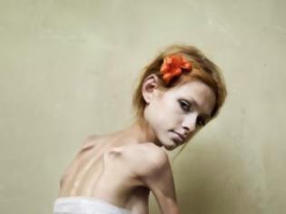 Φωτογραφία για Νευρογενής ανορεξία ΔΕΝ σημαίνει έλλειψη όρεξης για φαγητό. Συμβουλές για γονείς και εκπαιδευτικούς
