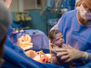 Φωτογραφία για Viral φωτο: Νεογέννητο κοιτά με νεύρα τον μαιευτήρα
